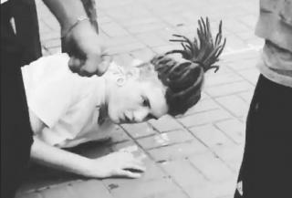 В центре Киева подростки жестоко избили неформала. Ему пришлось удалить часть черепа