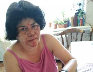 Под Киевом каратист с братом до потери сознания избили женщину, которая попросила его не мусорить