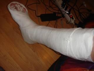 В центре Киева вор-рецидивист сломал ногу, уходя от погони