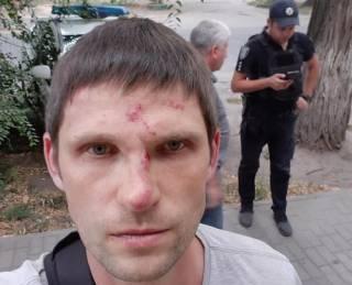 В Днепре жестоко избили волонтера за то, что у него «было хорошее настроение»