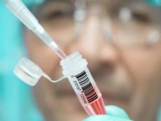 Ученые наконец-то создали «полноценную» вакцину от ВИЧ