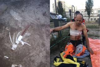 Возле одной из киевских школ мужчина пытался покончить с собой