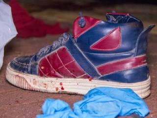 В Киеве неосторожный иностранец остался без ноги