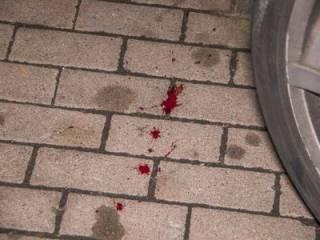 В Киеве «быки» на Maybach подстрелили человека за сделанное замечание