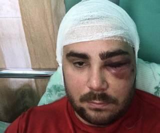В новогоднюю ночь в Запорожье жестоко избили и подстрелили лидера «евробляхеров»