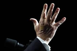 Окровавленный пластырь на руке Трампа озадачил американские СМИ