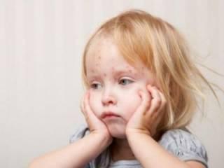 Стало известно, сколько украинцев ежедневно заболевают корью