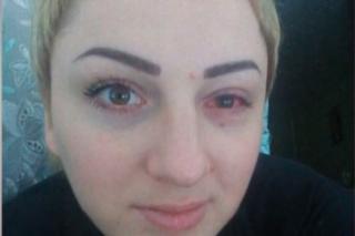В Сумах женщина почти ослепла на один глаз после популярной косметологической процедуры
