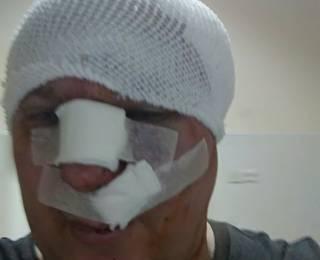 В Киеве проломили череп известному догхантеру Святогору
