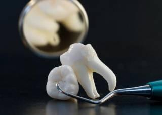Как оказалось, плохие зубы могут привести к онкологии