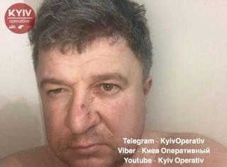 В Киеве пьяный неадекват на глазах у детей избил жену и выбросил с 12 этажа собаку