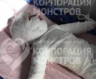 На Одесщине мать четырех детей едва не сварила своего младенца заживо (18+)