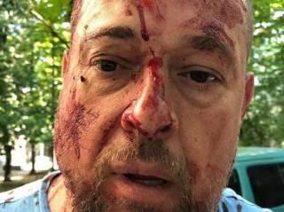 В Харькове по-жесткому «оприходовали» активиста Нацкорпуса