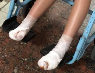 Под Киевом девочка получила ожоги ног, катаясь на аттракционе