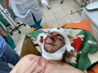 На Сумщине жестоко избили бывшего мэра Конотопа Артема Семенихина