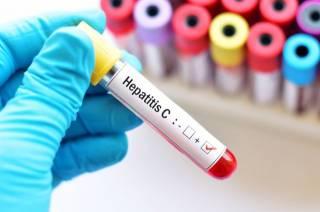 ВОЗ озвучила страшные данные по гепатиту в мире: счет идет на сотни миллионов людей