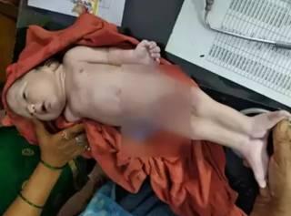 В Индии родился… ребенок-русалка (18+)