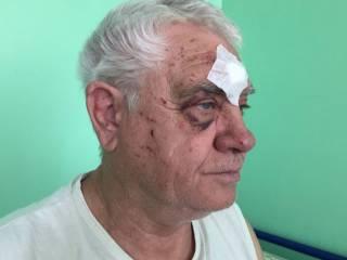 В Харькове полицейский в трамвае жестоко избил пенсионера