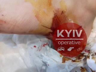 В Киеве бойцовский пес набросился на мальчика, разорвав ему пятку до кости