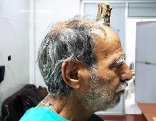 В Индии у мужчины вырос «адский рог» (18+)