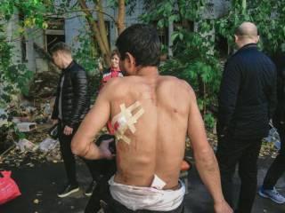 В Киеве раненый в поножовщине мужчина попросил… позвонить Кличко