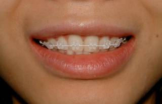Какая система для выравнивания зубного ряда самая надежная и эстетичная