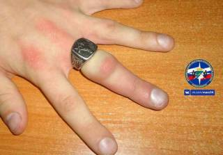 Масонское кольцо чуть не лишило парня пальца на руке