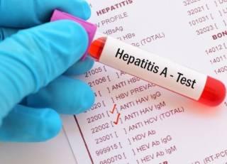 В черниговской школе гепатитом заболели 34 человека. Большинство – дети
