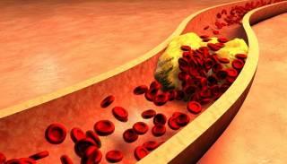 Назван простой способ снизить уровень холестерина в крови