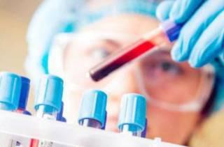Ученые поведали, как по анализу крови можно узнать о «приближении» смерти