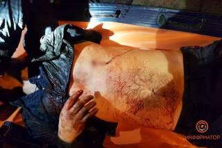 Ночью в Днепре зарезали молодого парня (18+)