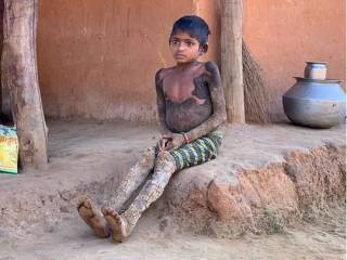 В Индии девочка превращается в камень из-за неизлечимой болезни