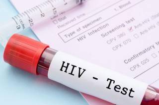Медики рассказали о здоровье «лондонского пациента», который излечился от ВИЧ