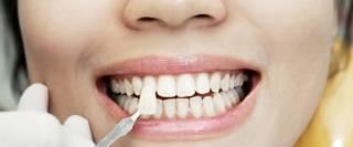 Как добиться красивой улыбки с помощью ультраниров