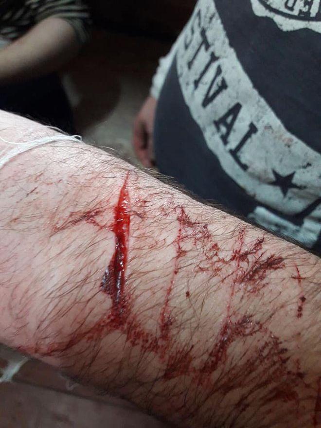 В СИЗО Черновцов заключенные порезали руки в знак протеста