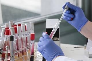 Коронавирус атакует не только легкие, — выводы немецких ученых