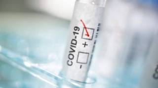 В Украине начнется массовое тестирование на антитела к COVID-19