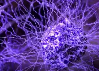 Российский врач рассказал о странном «симптоме» рака
