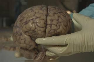 Ученые доказали, что коронавирус может нести самую серьезную угрозу для человеческого мозга