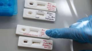 В Италии создали самый быстрый тест на коронавирус
