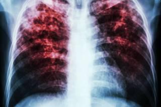 Эпидемия туберкулеза в Украине набирает обороты