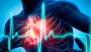 Назван ключевой фактор инфаркта