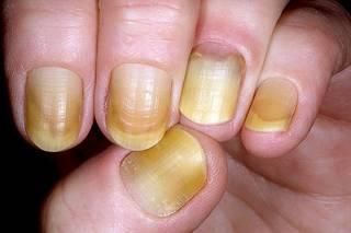 Как оказалось, желтый цвет ногтей – предвестник серьезной болезни