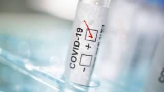 Украинские ученые научились проводить до миллиона тестов на коронавирус в день