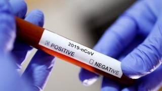Атака британского мутанта. Чем опасен новый штамм коронавируса и спасет ли от него вакцина