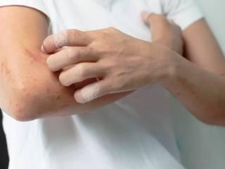 Дерматолог заявил, что зуд может быть предвестником смертельной болезни
