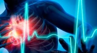 Названы очень странные предвестники инфаркта