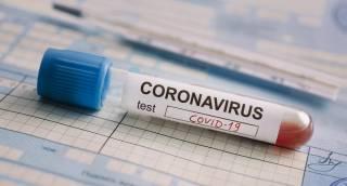 Заболеваемость коронавирусом в Украине снова пошла на спад