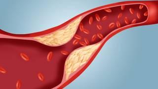 Почему повышается риск холестерина в крови и чем поможет добавка ТАНИКОР