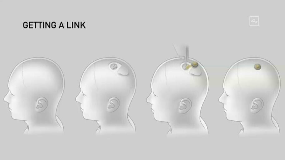 Neuralink чип